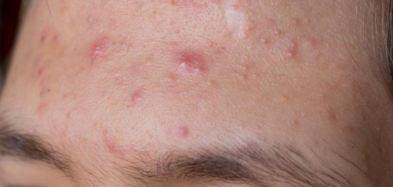blodkar under huden